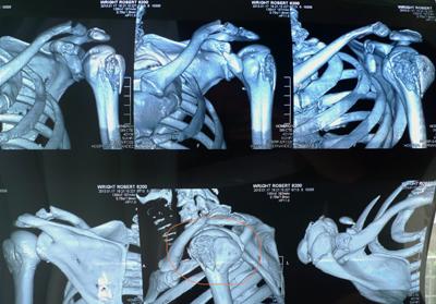 CT scan, 5 fractures!